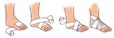 脚踝受伤后,如何正确的缠脚踝绷带
